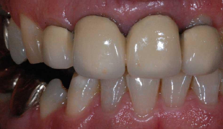 Alte konventionelle Kronenversorgung mit Metallunterkonstruktion. Das Zahnfleisch erscheint dunkel und unansehnlich.