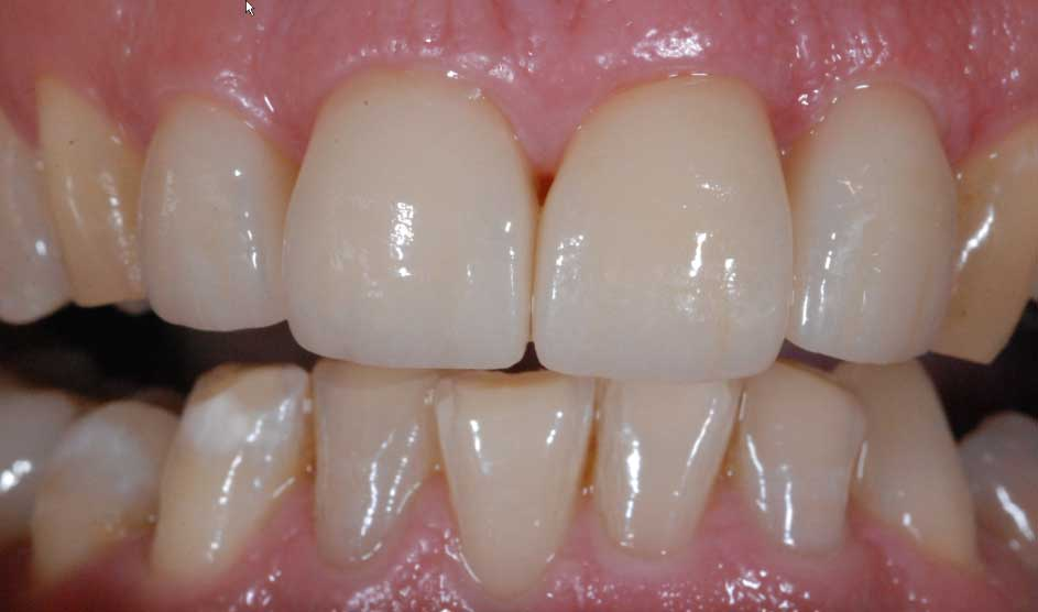Neuversorgung mit vollkeramischen Materialien und korrekter Kronenrandposition. Durch Lichteinfall in den Zahnfleischbereich erscheint dies gesund jugendlich rosa und ästhetisch ansprechend