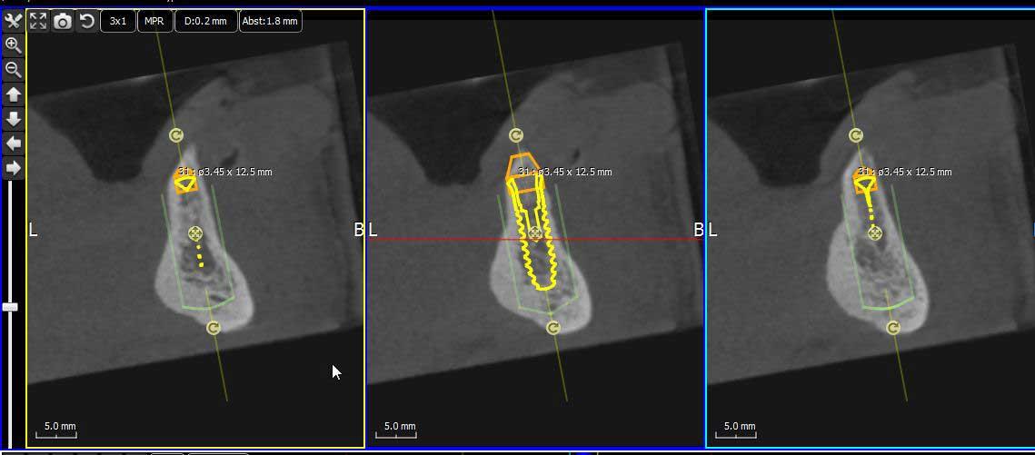 Darstellung der Knochensituation für eine festsitzende Zahnversorgung