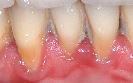 Ausgangsbefund eines Patienten mit erkranktem Zahnfleisch