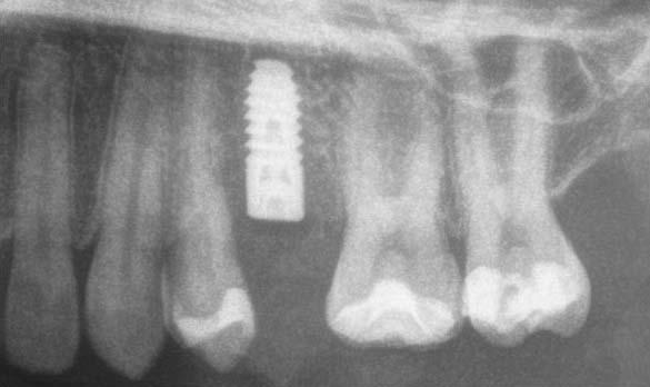 Röntgenbild eine Stunde später nach Sofortimplantation