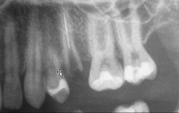 Röntgenbild mit nicht erhaltungswürdiger Zahnwurzel